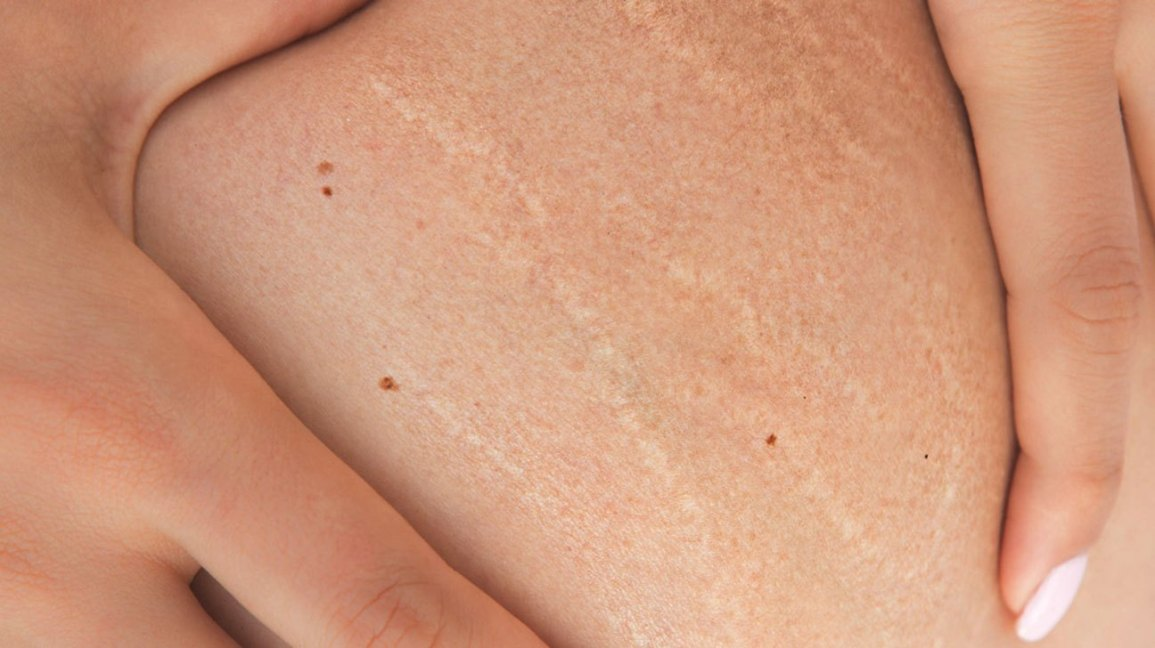 stretch marks,what to know and how to get rid of them