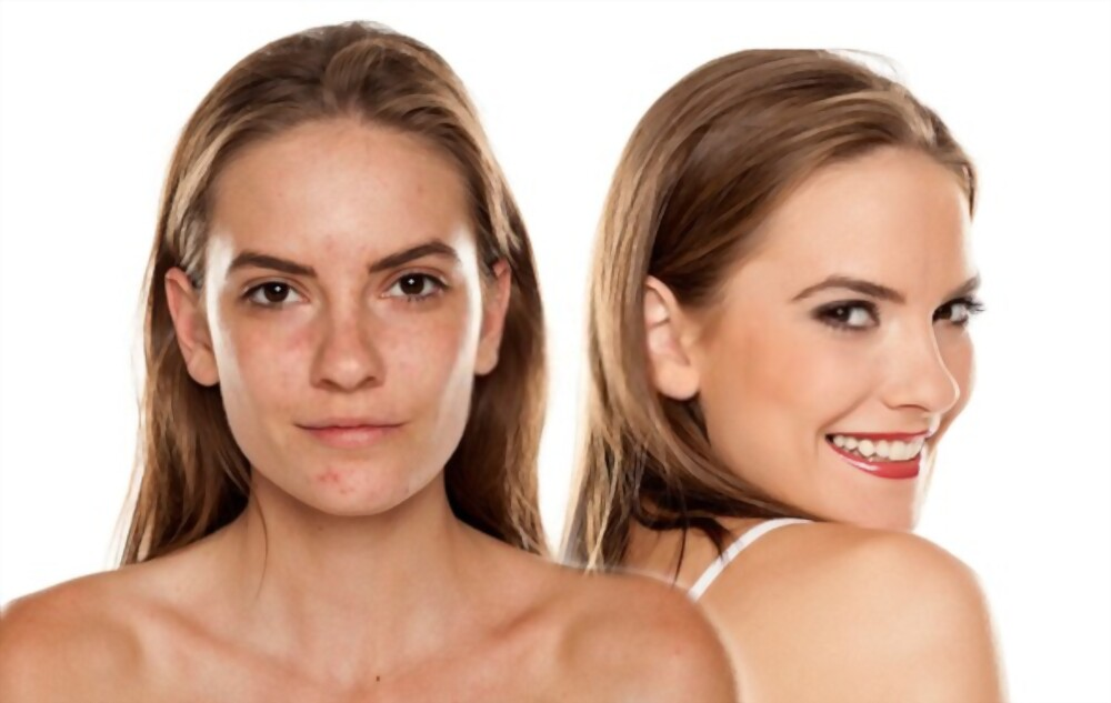 get rid of acne instantly